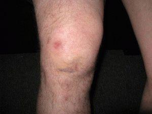 Ушиб коленной чашечкой