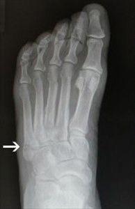knoglerne i foden
