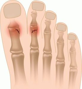 Перелом пальцев