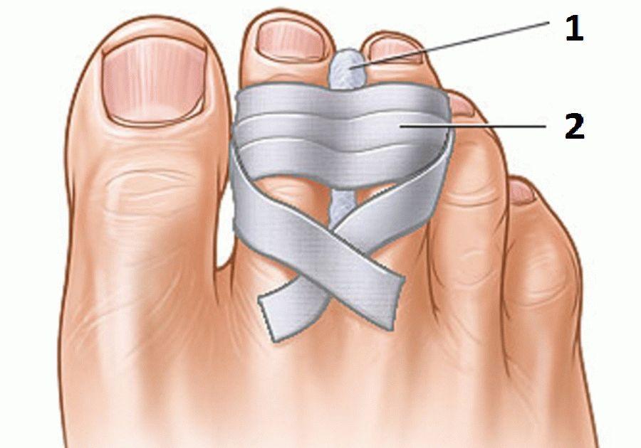Что делать при переломе пальца на ноге в домашних