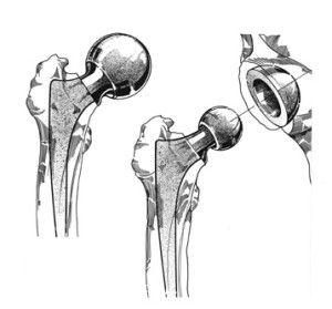 Протез при переломе