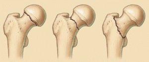 Переломы шейки бедра