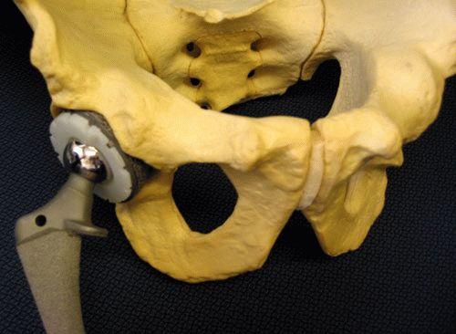 Применение деротационного сапожка при переломе шейки бедра: роль ...