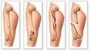 Переломы ног