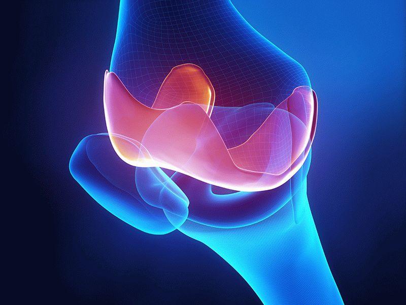 Генерализованный остеоартроз: что это такое и как лечить