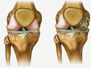 Остеоартроз изнутри сустава