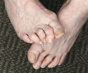 Деформируются пальчики ног