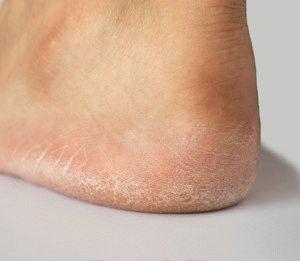 Образование трещин на ногах