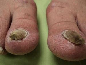 Болезни ногтей на ногах фото и описание