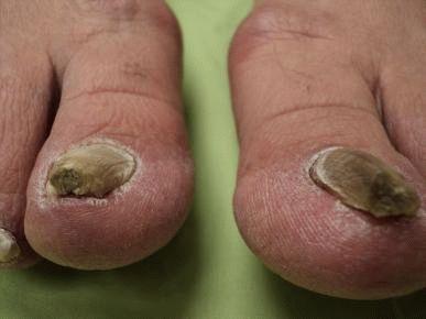 Ногти на ногах болезни по ногтям фото