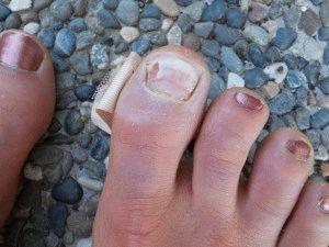 Отслаиваются ногти на ногах причина