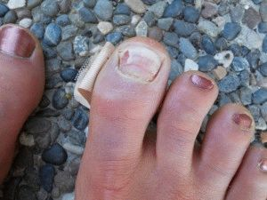 Отходят ногти на больших пальцах ног