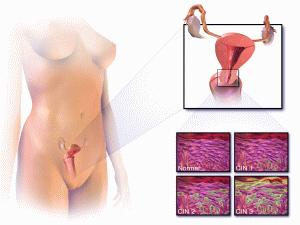 Синдром дисплазии у женщины