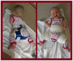 Болезнь младенца