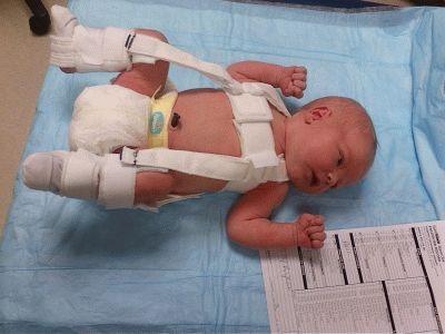 Тазобедренная дисплазия у новорожденных почему развивается и как бороться