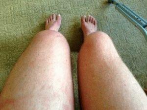 Болезнь нижних конечностей