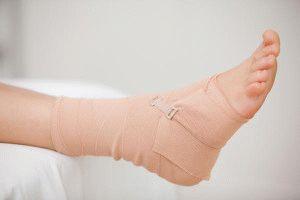 Травма связки ноги