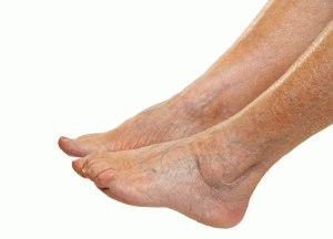Отекли ноги