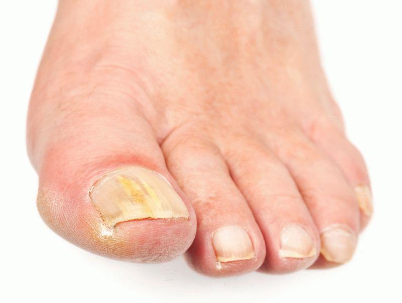 Как лечить трескаются пальцы на руках возле ногтей