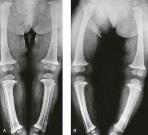 Детская суставная дисплазия ног