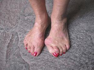 Выступающая косточка на ноге