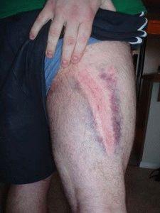 Боль в ноге от гематомы