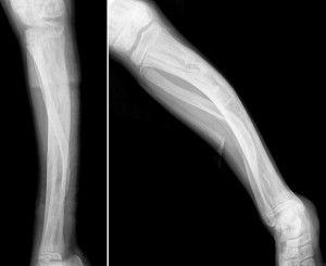 Болезнь костной ткани