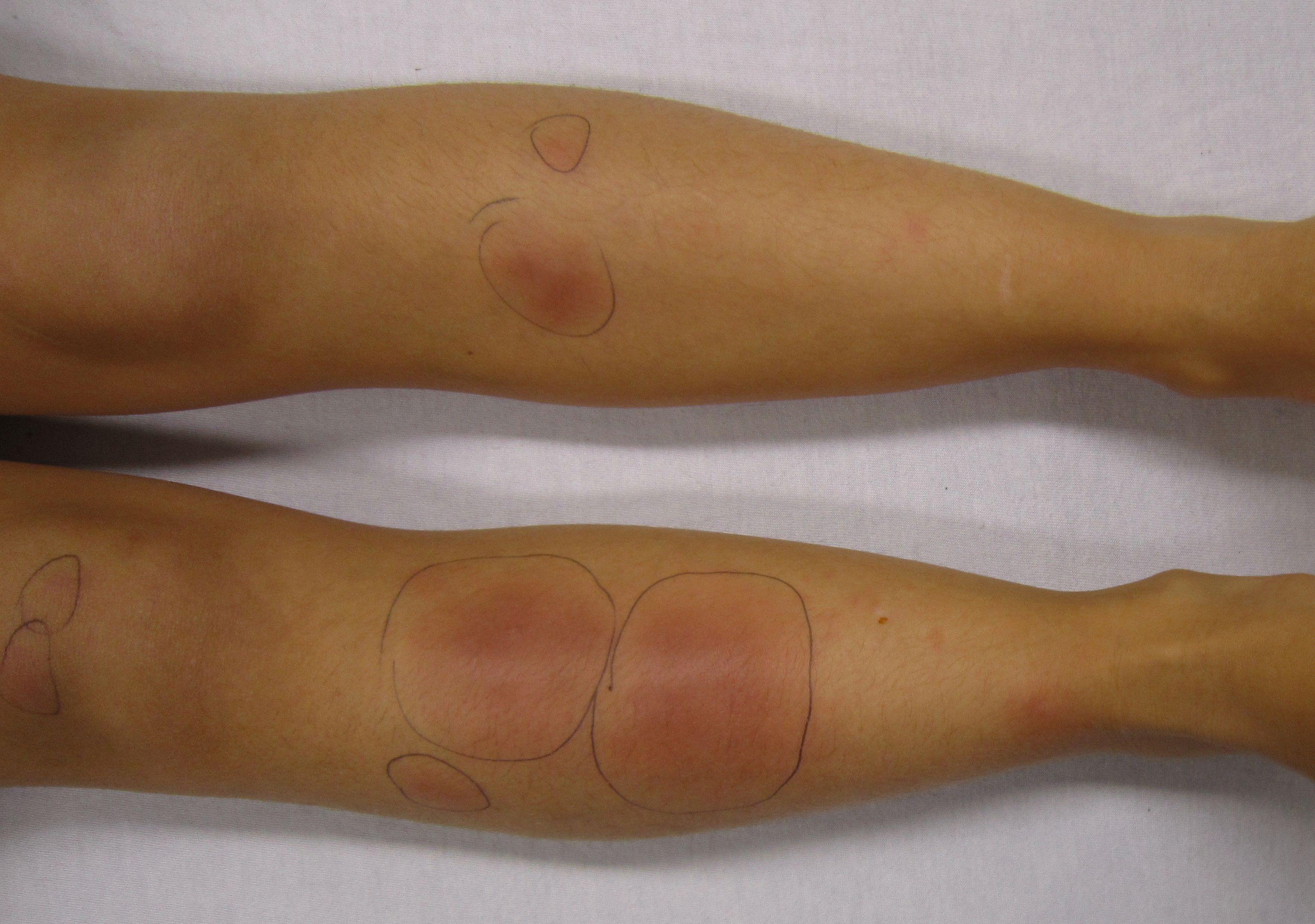 Узловатая эритема симптомы и лечение
