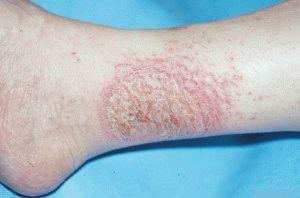 Мокрая экзема на ногах лечение