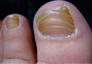 Пожелтение ногтя на большом пальце ноги