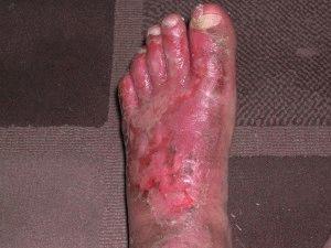 Запущенная грибковая инфекция