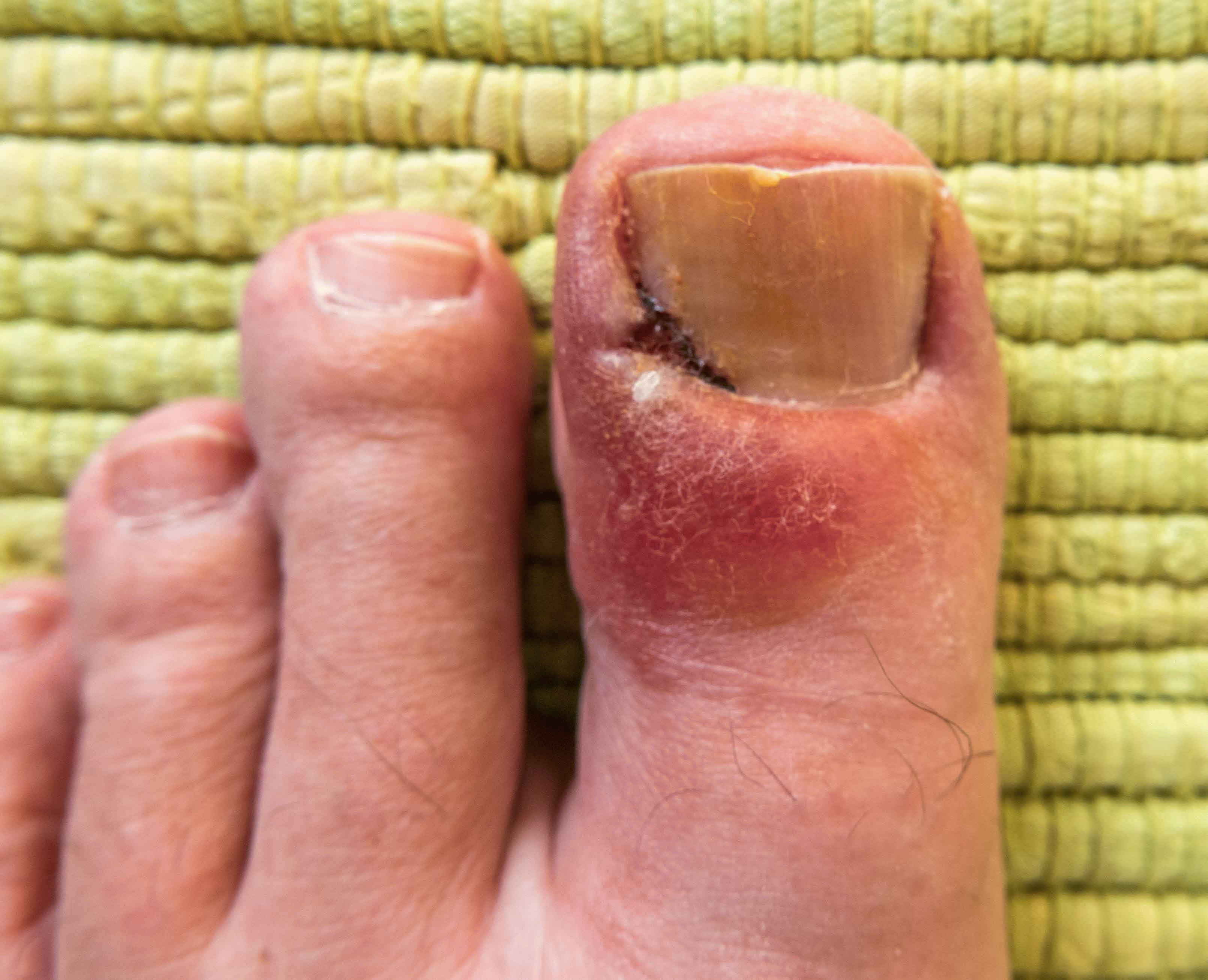Как лечить воспаление пальца у ногтя на ноге