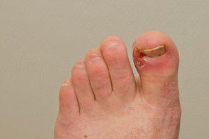 Нарыв у ногтя на ноге