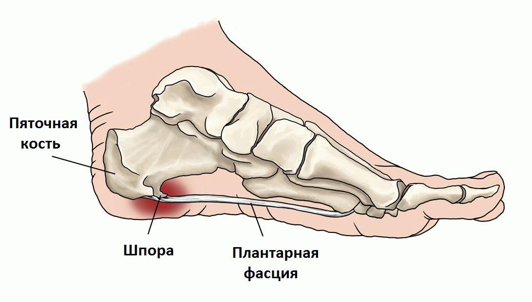 болит нога в области пятки