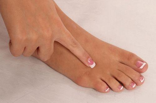 Тендинит стопы: лечение и профилактика