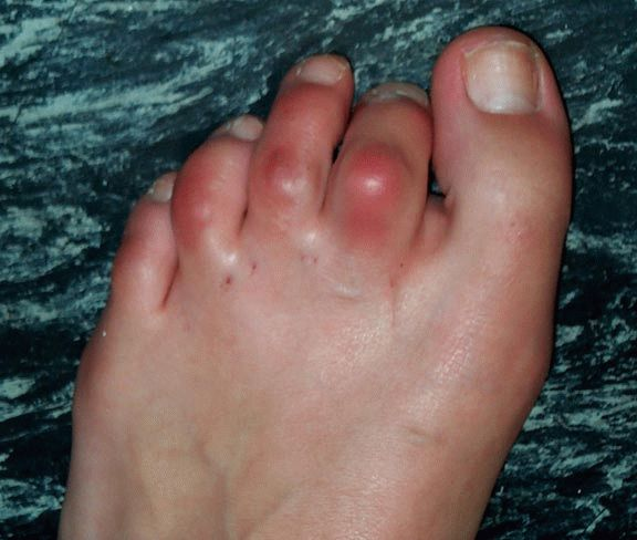 Воспаление сустава большого пальца ноги: лечение и профилактика