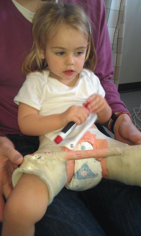 Фото ребенка с дисплазией