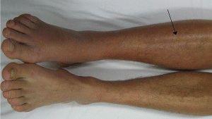 Аллергическая сыпь на ногах