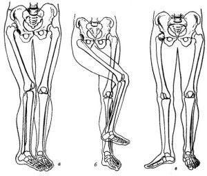 Смещение головки кости
