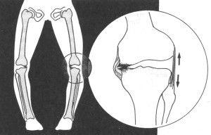 О-образные ножки
