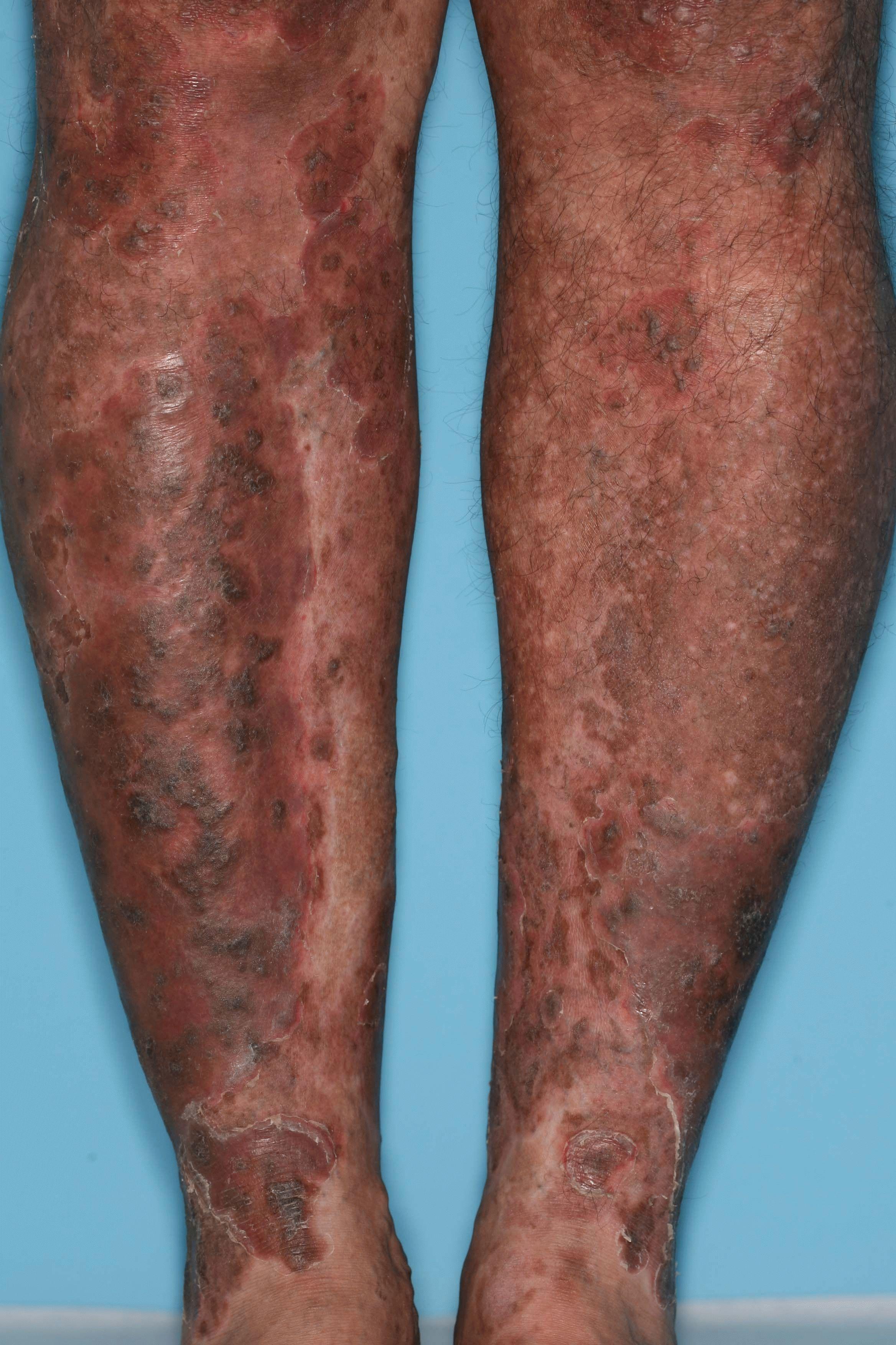 Псориаз на ногах и стопах фото лечение симптомы начальной стадии причины