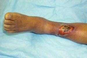 Чем лечить язву на ноге