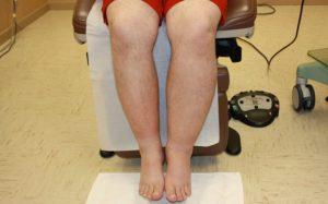 Боли в ногах при тромбофлебите