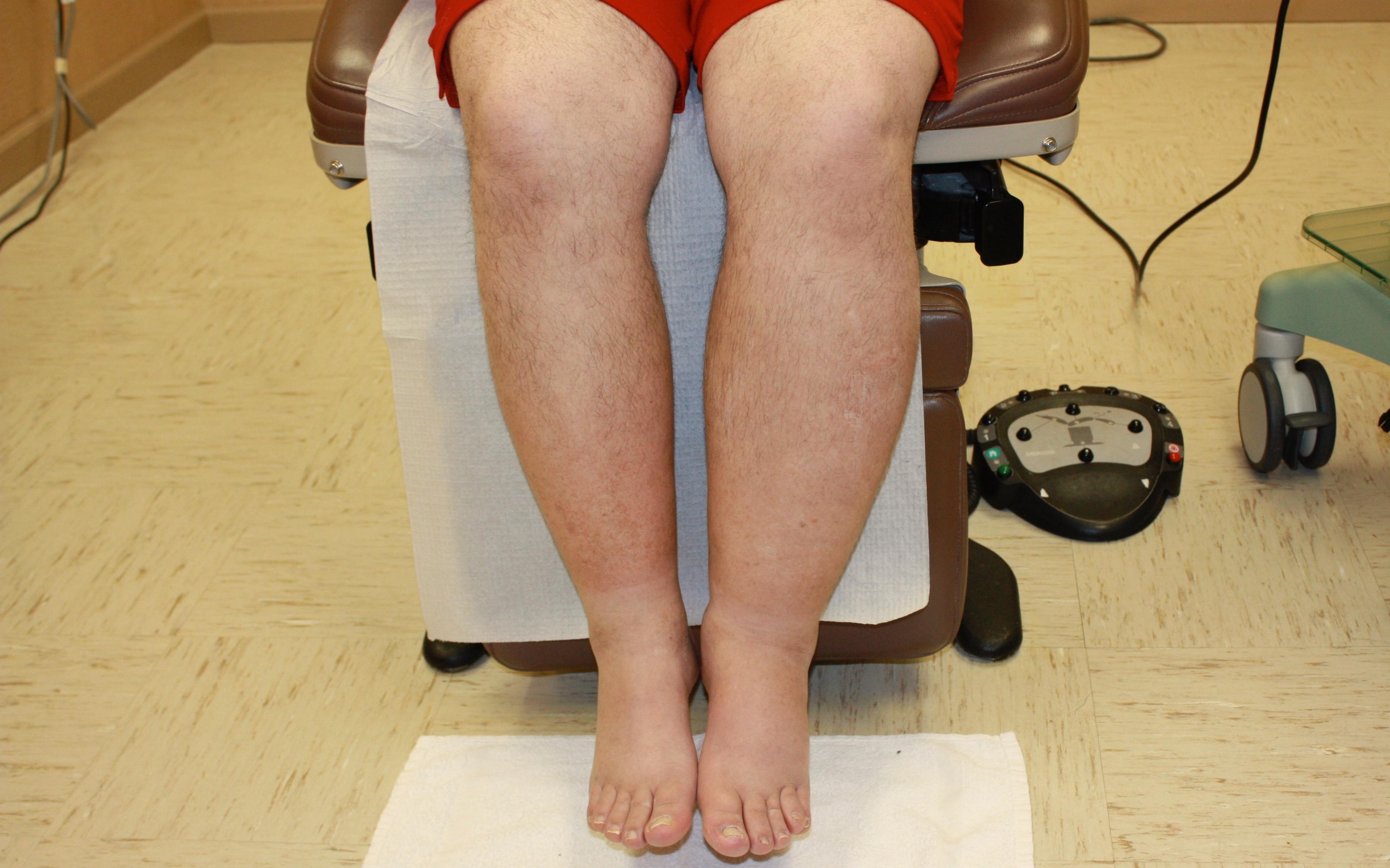 Наркоз при операции на венах ноги