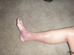 Миозит на ноге у пациента