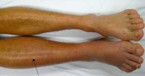 Тромб в вене ноги