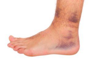 Ушиб мягких тканей ног