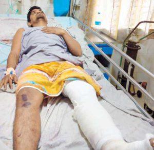 Перелом ноги у больного