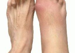 Особенности подагрического артрита