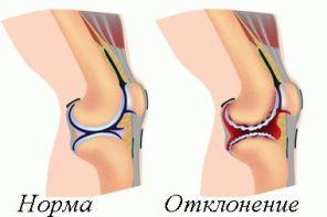 Лечение деформирующего артроза коленного сустава и его степени